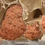 nitrogen fixing bacteria