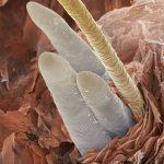 follicle mite