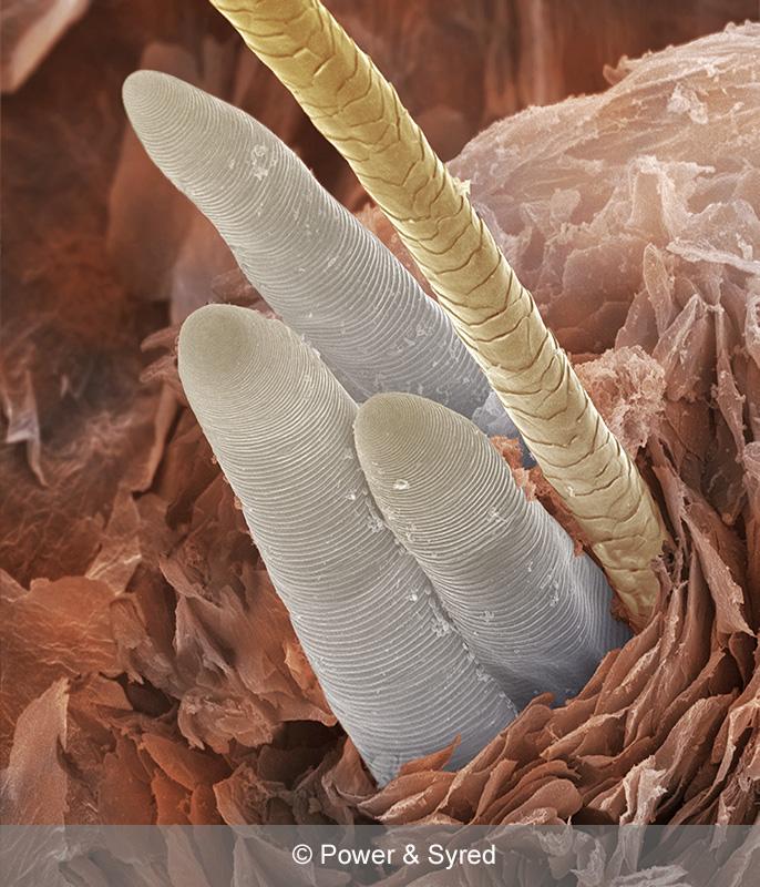 Parasites Ps Micrographs
